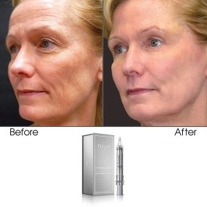Age-Defying Instant Wrinkle Treatment Eraser Powered by Bio Organica & Apple & Grape Stem Cell