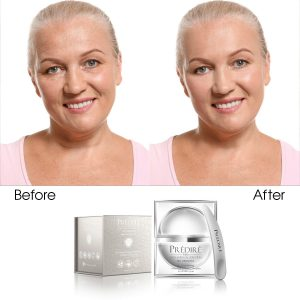 Bio Brightening & Skin Toning Intensive Cream Complex (Infused)