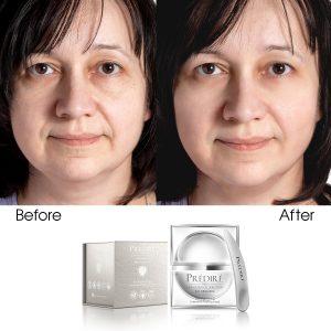 Bio Brightening & Skin Toning Intensive Peeling Mask (Infused)