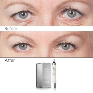 Bio Brightening & Eye Lifting Concentrate Solution (Infused)
