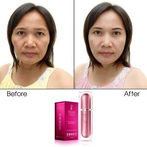 Skin Collagen Cell Renewal Cream (Treats Wrinkles & Age-Defying)