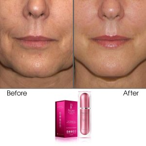 Skin Collagen Cell Renewal Night Serum (Treats Wrinkles & Age-Defying)