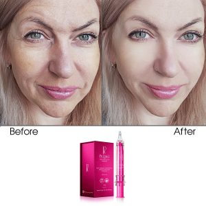 Skin Collagen Cell Renewal Lifting Concentrate Treatment (Infused)