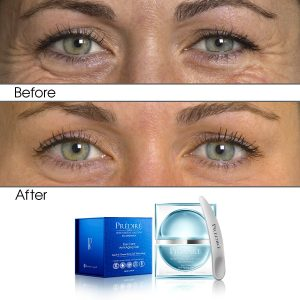 Intensive Rapid Renewal Eye Care Anti Aging Gel (Treats Puffiness and Dark Circles)