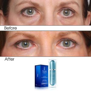 Intensive Rapid Renewal Eye Care Anti Aging Night Serum (Treats Puffiness and Dark Circles)