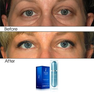 Intensive Rapid Renewal Eye Care Anti Aging Day Serum (Treats Puffiness and Dark Circles)