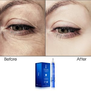 Anti-Aging Eye Care Lifting Concentrate (Infused)