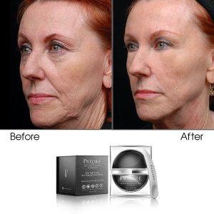 Skin Tightening & Tissue Bonding Mask (Treats Deep Wrinkles & Cellulite)
