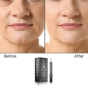 Skin Tightening & Tissue Bonding Wrinkle Cream (Rich with Vitamin E & Retinol), 10g (Infused)