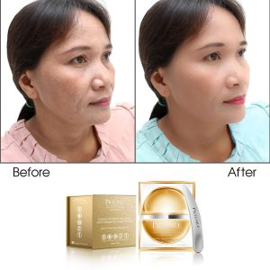 Golden Magnetic Mud Mask Rich Collagen & Oxygen Booster With Apple & Grape Stem Cell